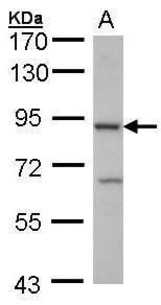 Cbl-b Rabbit anti-Human, Polyclonal, Invitrogen 100 µL; Unconjugated