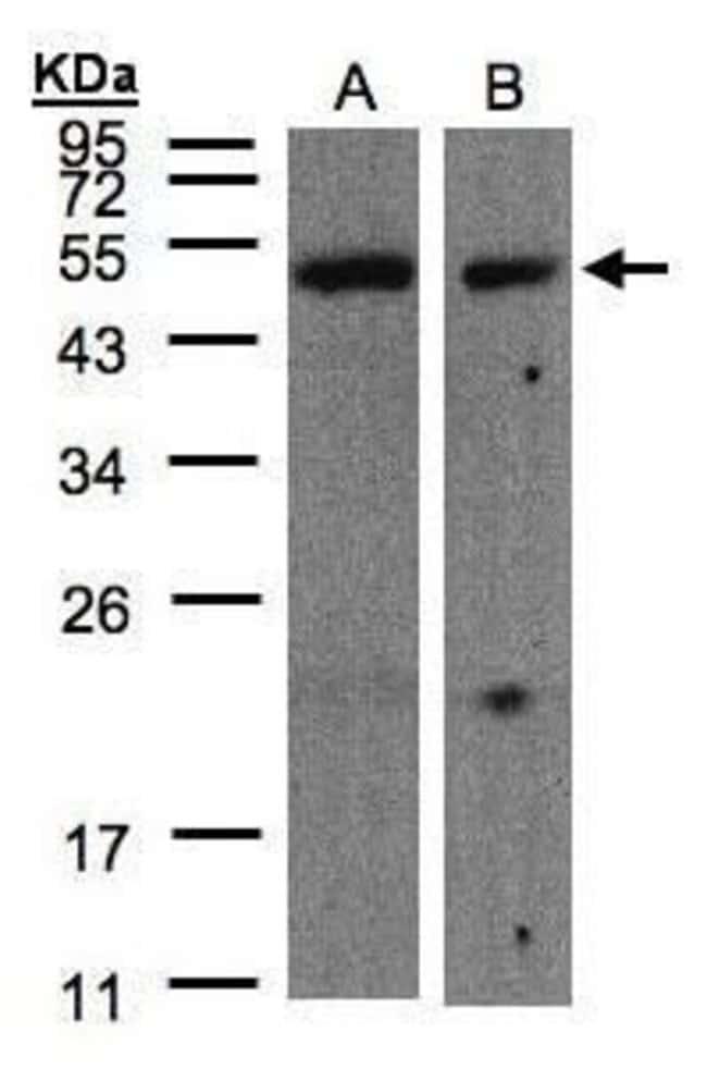 CARD8 Rabbit anti-Human, Polyclonal, Invitrogen 100 µL; Unconjugated