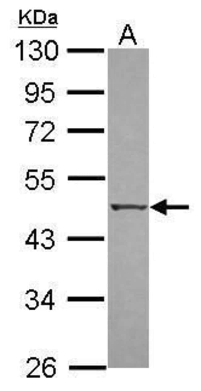 ZIPK Rabbit anti-Human, Polyclonal, Invitrogen 100 µL; Unconjugated