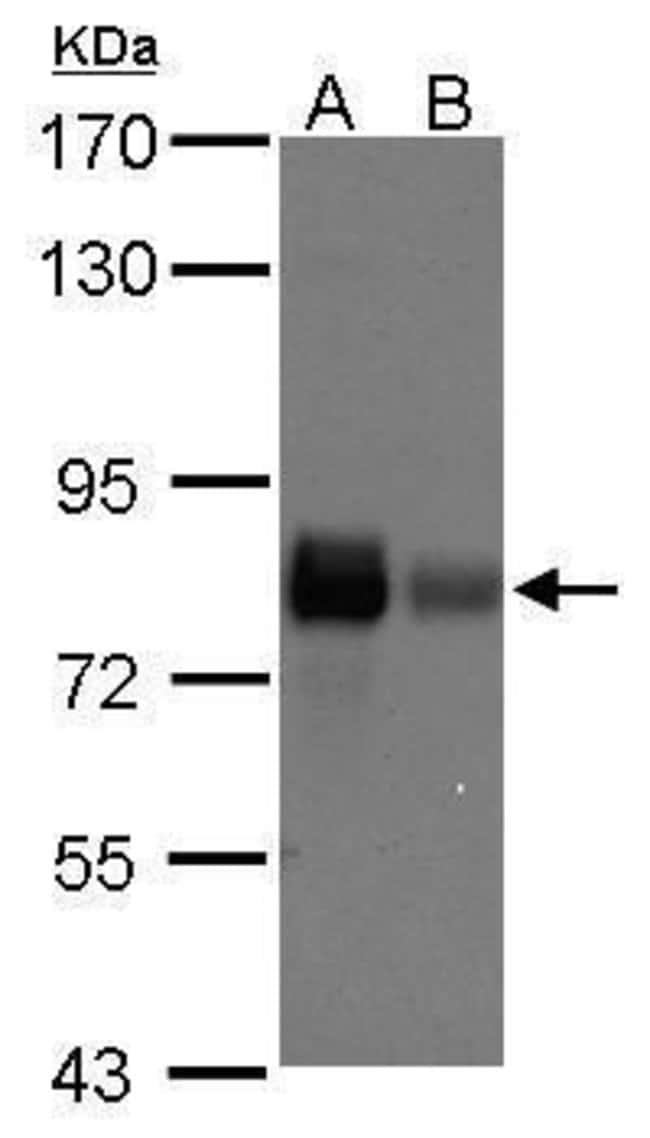 Caldesmon Rabbit anti-Human, Polyclonal, Invitrogen 100 µL; Unconjugated