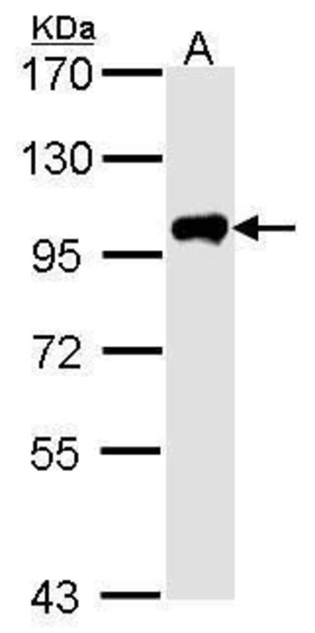Calpain 3 Rabbit anti-Human, Polyclonal, Invitrogen 100 µL; Unconjugated