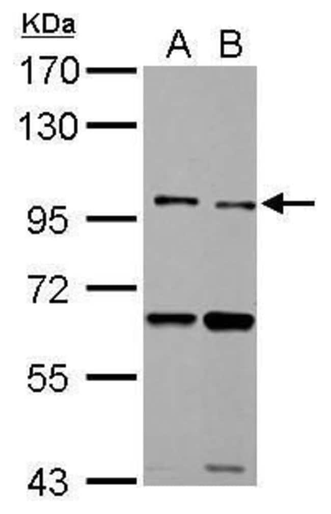 TLR5 Rabbit anti-Human, Polyclonal, Invitrogen 100 µL; Unconjugated