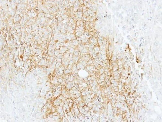 ABCB11 Rabbit anti-Human, Polyclonal, Invitrogen 100 µL; Unconjugated