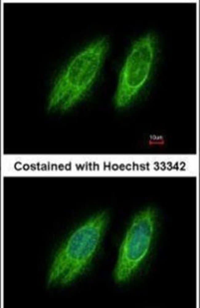 GBF1 Rabbit anti-Human, Polyclonal, Invitrogen 100 µL; Unconjugated