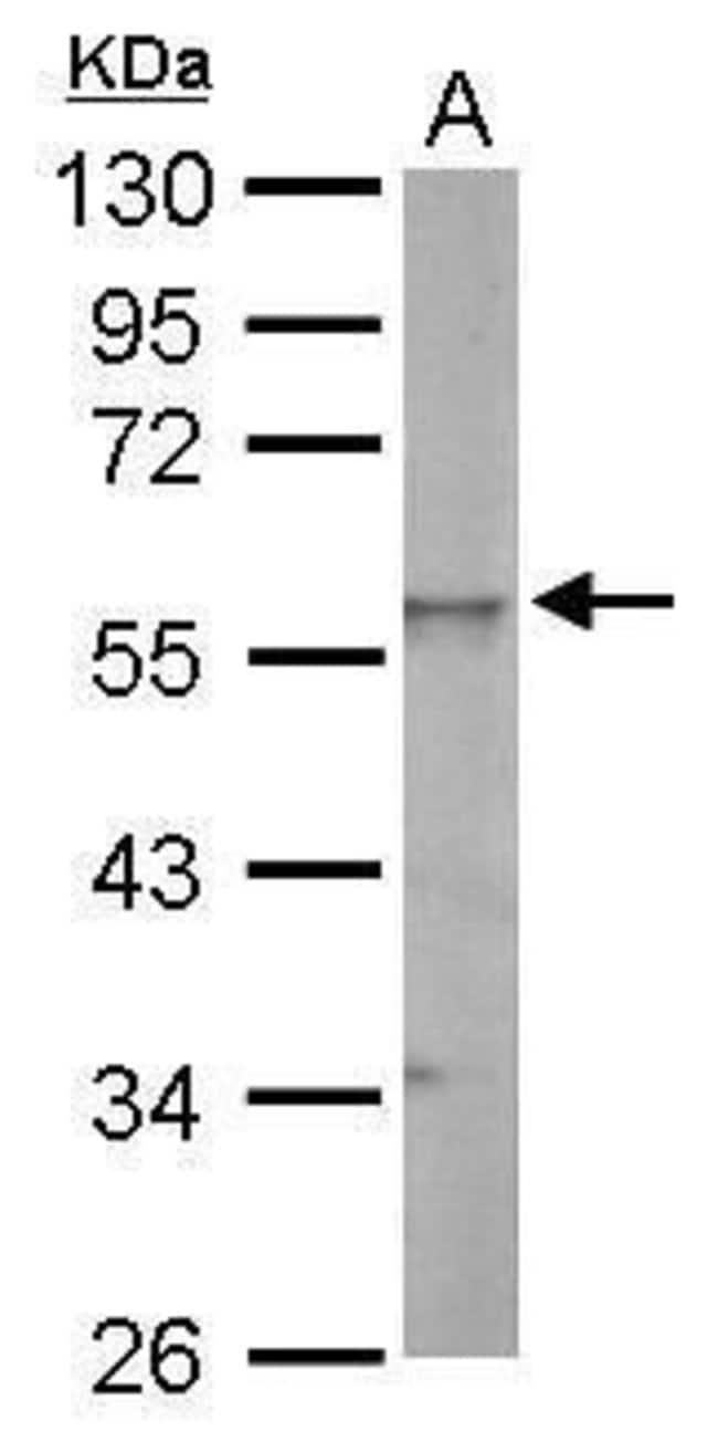 ESRRG Rabbit anti-Human, Mouse, Rat, Polyclonal, Invitrogen 100 µL;
