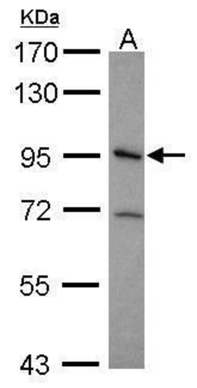 ITGB5 Rabbit anti-Human, Polyclonal, Invitrogen 100 µL; Unconjugated