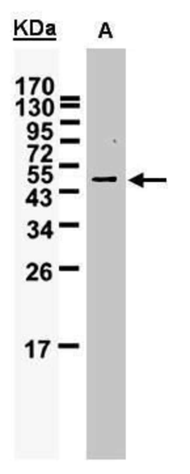 WTAP Rabbit anti-Human, Polyclonal, Invitrogen 100 µL; Unconjugated