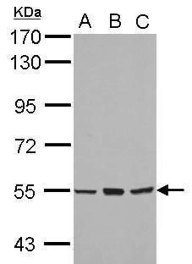 CYP4B1 Rabbit anti-Human, Polyclonal, Invitrogen 100 µL; Unconjugated