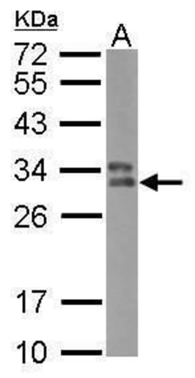 HLA-DPB1 Rabbit anti-Human, Polyclonal, Invitrogen 100 µL; Unconjugated