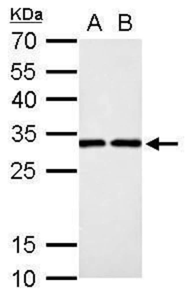 DCK Rabbit anti-Human, Rat, Polyclonal, Invitrogen 100 µL; Unconjugated