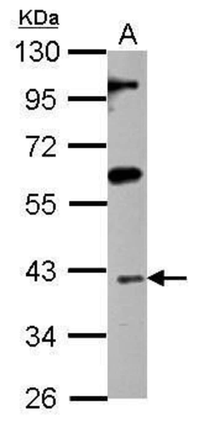 ISL1 Rabbit anti-Human, Rat, Polyclonal, Invitrogen 100 µL; Unconjugated