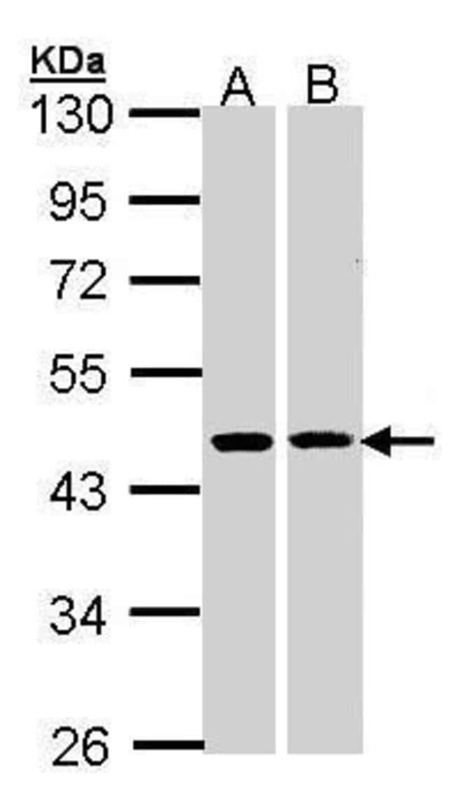 HSD3B2 Rabbit anti-Human, Polyclonal, Invitrogen 100 µL; Unconjugated
