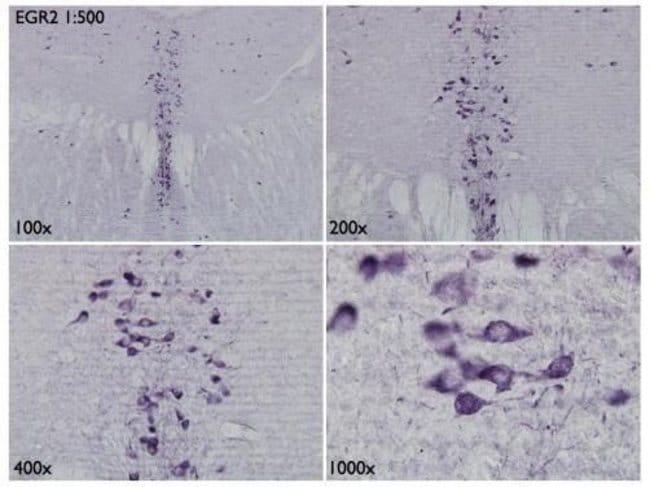 EGR2 Rabbit anti-Human, Mouse, Polyclonal, Invitrogen 100 µL; Unconjugated