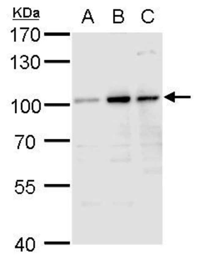 Aconitase 1 Rabbit anti-Human, Polyclonal, Invitrogen 100 µL; Unconjugated