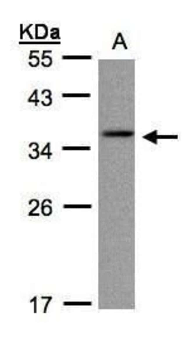 CRYGC Rabbit anti-Human, Polyclonal, Invitrogen 100 µL; Unconjugated