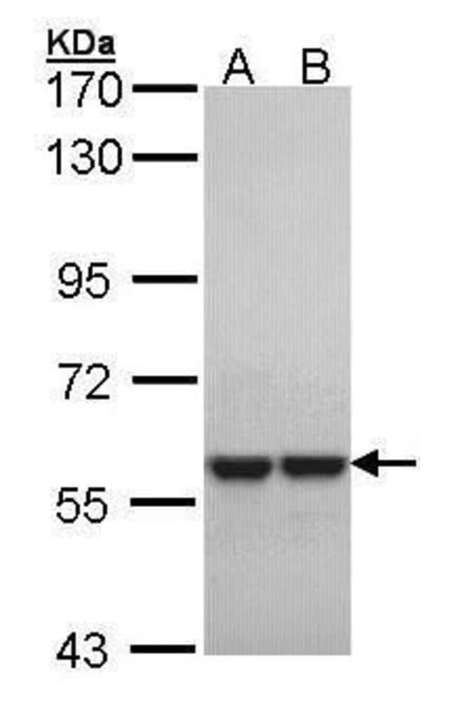 MUTYH Rabbit anti-Human, Mouse, Polyclonal, Invitrogen 100 µL; Unconjugated