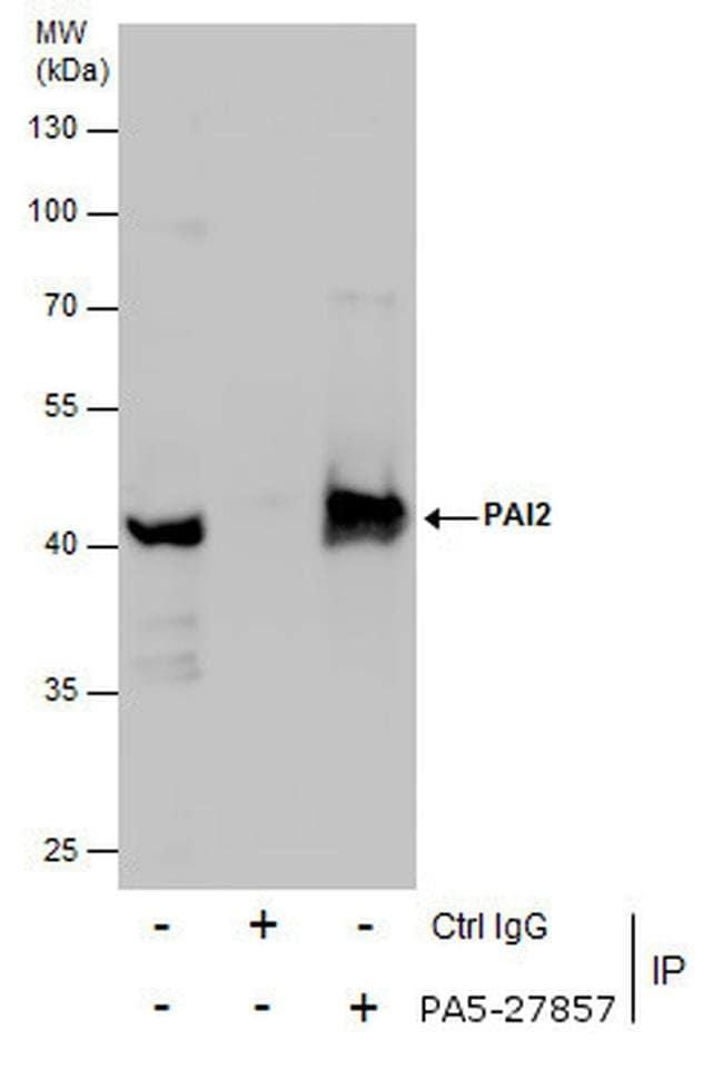 SERPINB2 Rabbit anti-Human, Mouse, Polyclonal, Invitrogen 100 µL;