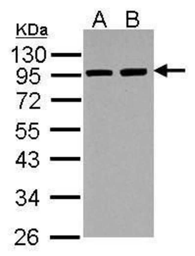 alpha Actinin 3 Rabbit anti-Human, Mouse, Rat, Polyclonal, Invitrogen 100