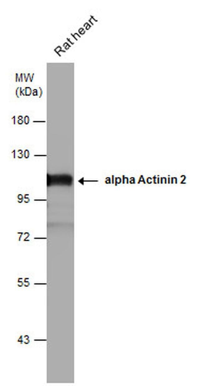 alpha Actinin 2 Rabbit anti-Human, Mouse, Rat, Polyclonal, Invitrogen 100