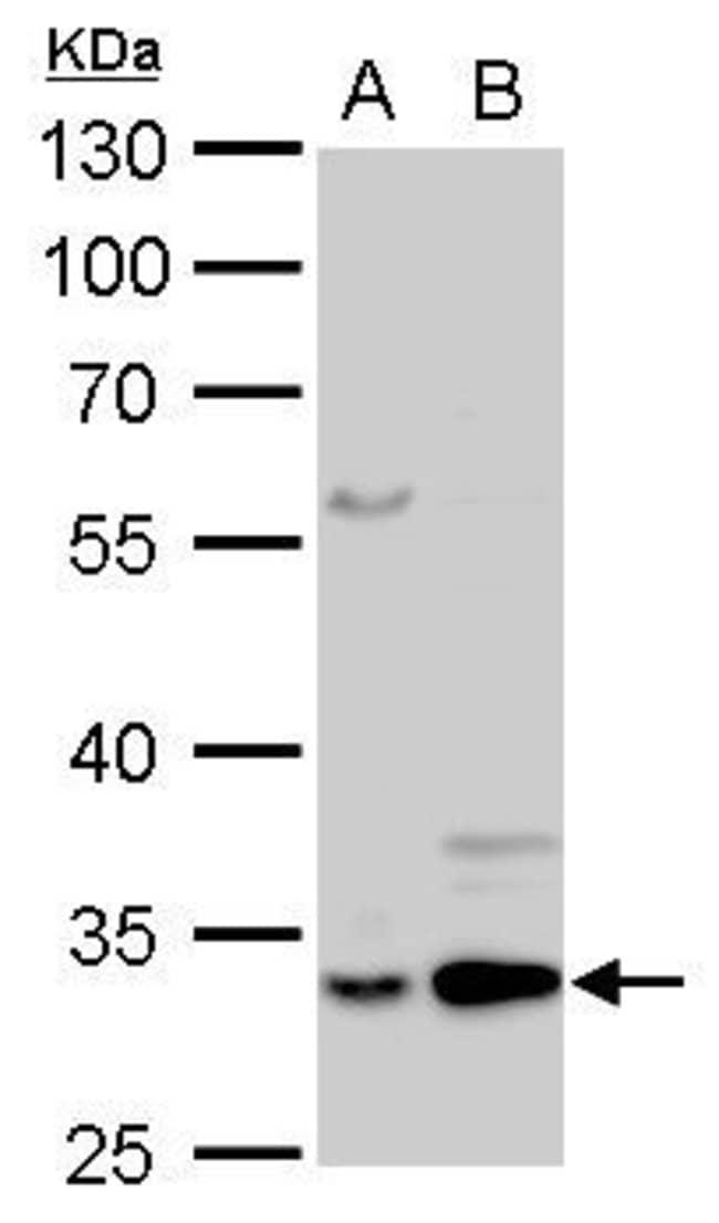 Annexin V Rabbit anti-Human, Mouse, Rat, Polyclonal, Invitrogen 100 µL;