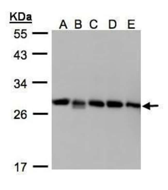 D4-GDI Rabbit anti-Human, Polyclonal, Invitrogen 100 µL; Unconjugated
