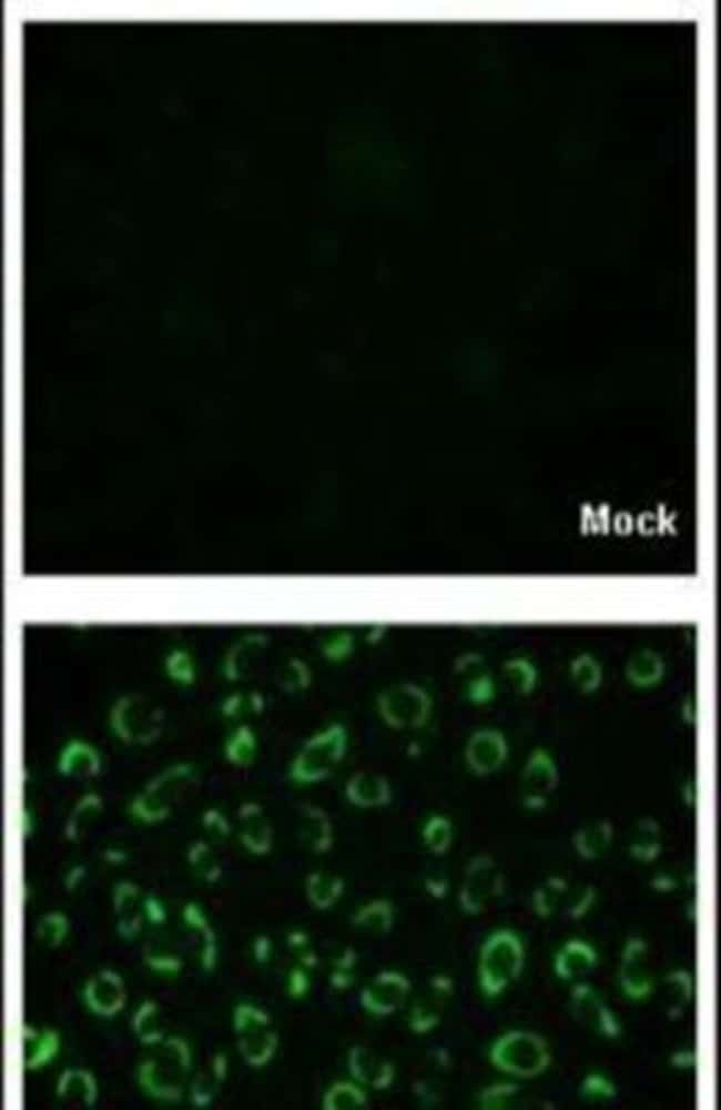 Dengue Virus Type 2 NS1 Rabbit anti-Virus, Polyclonal, Invitrogen 100 µL;