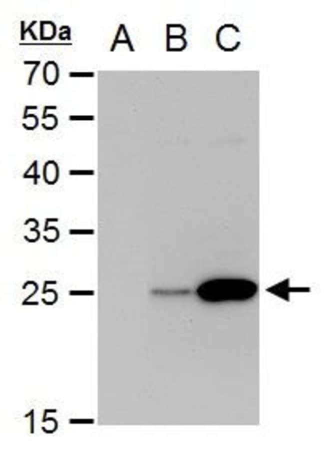 Dengue Virus Type 2 NS4B Rabbit anti-Virus, Polyclonal, Invitrogen 100