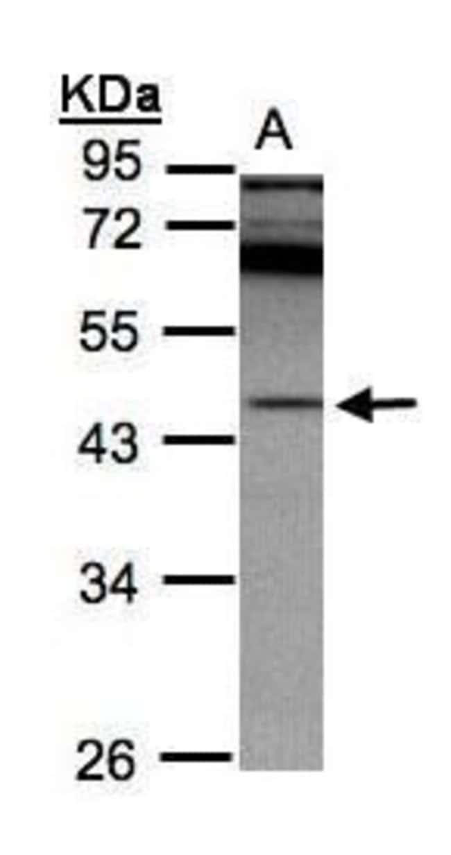 RISC Rabbit anti-Human, Polyclonal, Invitrogen 100 µL; Unconjugated