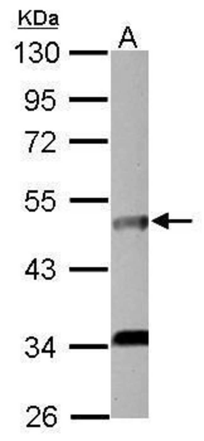 IL5RA Rabbit anti-Human, Polyclonal, Invitrogen 100 µL; Unconjugated