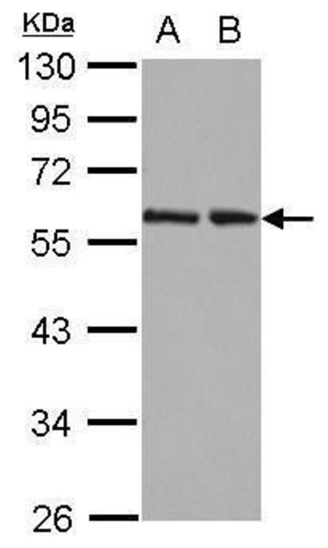 RAD23B Rabbit anti-Human, Polyclonal, Invitrogen 100 µL; Unconjugated