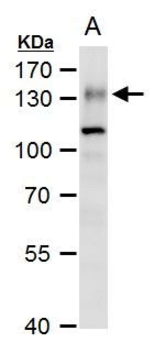 ENPP1 Rabbit anti-Human, Polyclonal, Invitrogen 100 µL; Unconjugated