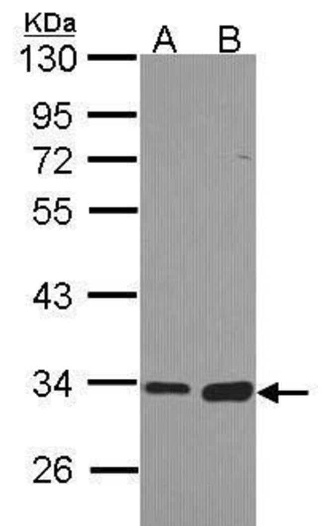 Monoacylglycerol Lipase Rabbit anti-Human, Mouse, Rat, Polyclonal, Invitrogen