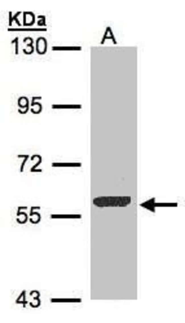 FMO3 Rabbit anti-Human, Mouse, Polyclonal, Invitrogen 100 µL; Unconjugated