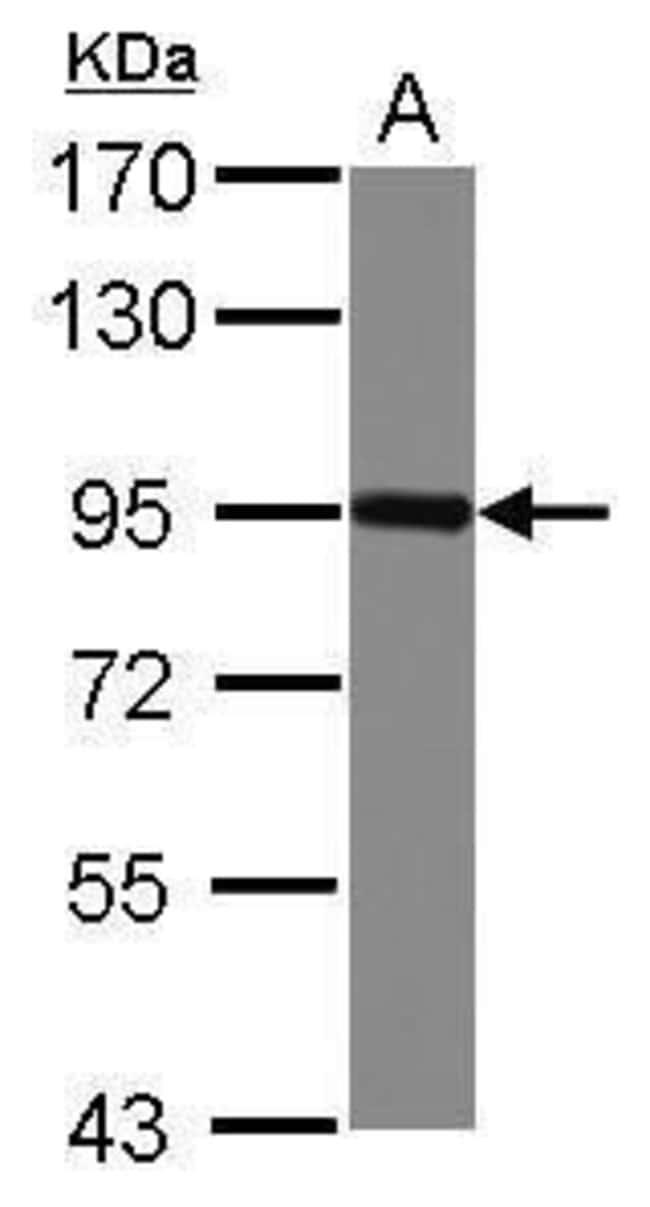 Nectin 3 Rabbit anti-Human, Polyclonal, Invitrogen 100 µL; Unconjugated