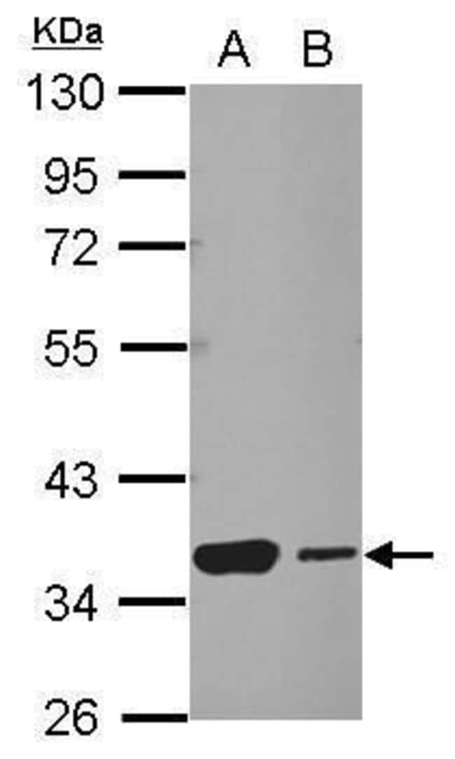 HSF2BP Rabbit anti-Human, Mouse, Polyclonal, Invitrogen 100 µL; Unconjugated