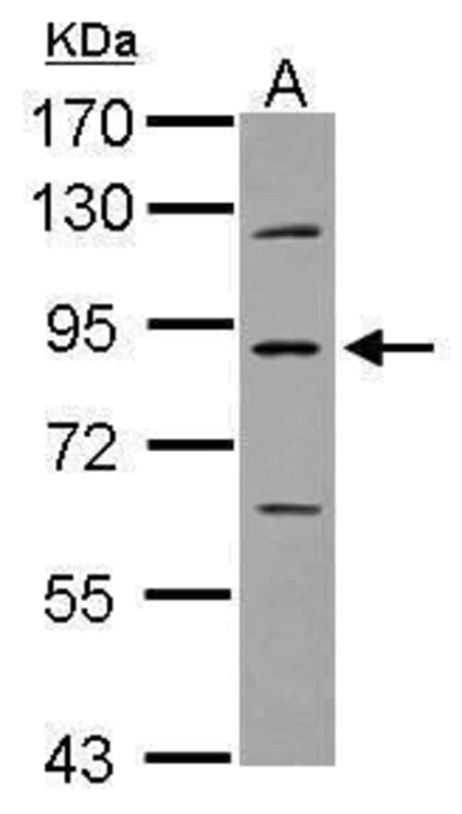 PLA2G6 Rabbit anti-Human, Polyclonal, Invitrogen 100 µL; Unconjugated