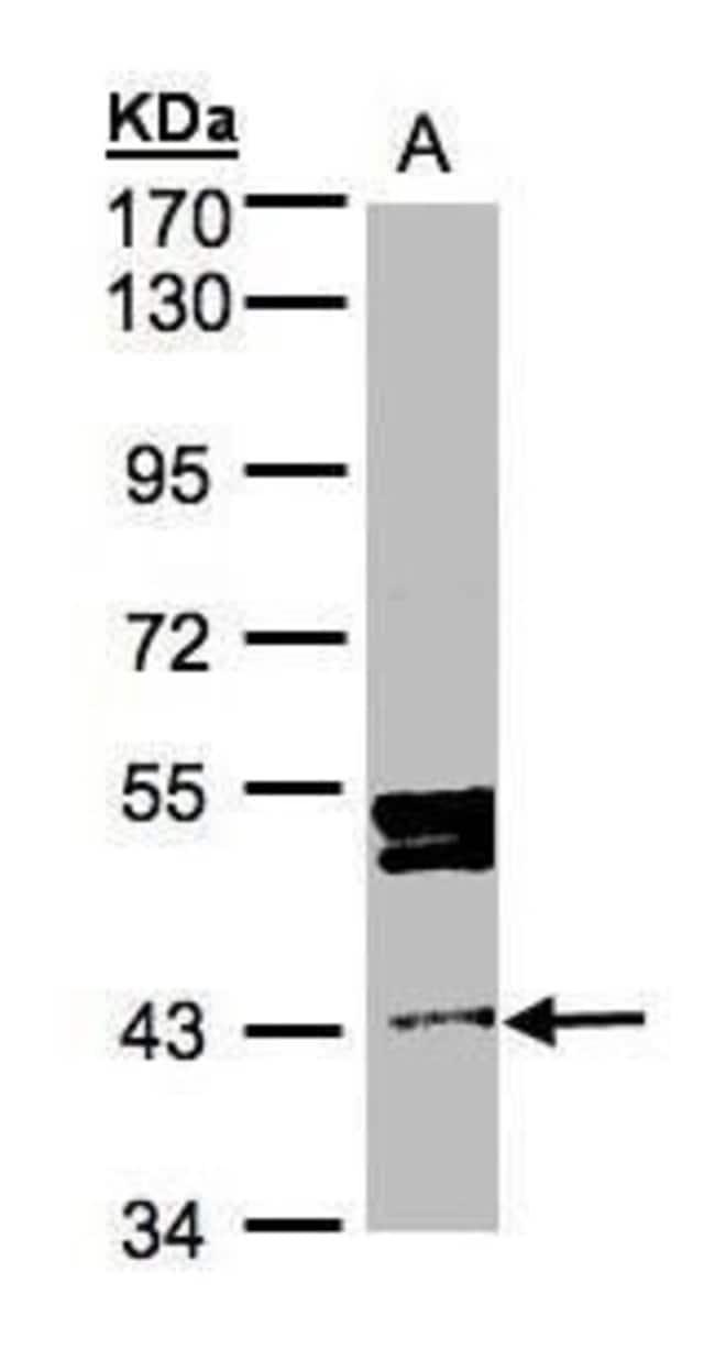 DDI1 Rabbit anti-Human, Polyclonal, Invitrogen 100 µL; Unconjugated