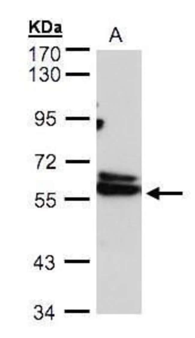 TCP-1 delta Rabbit anti-Human, Polyclonal, Invitrogen 100 µL; Unconjugated