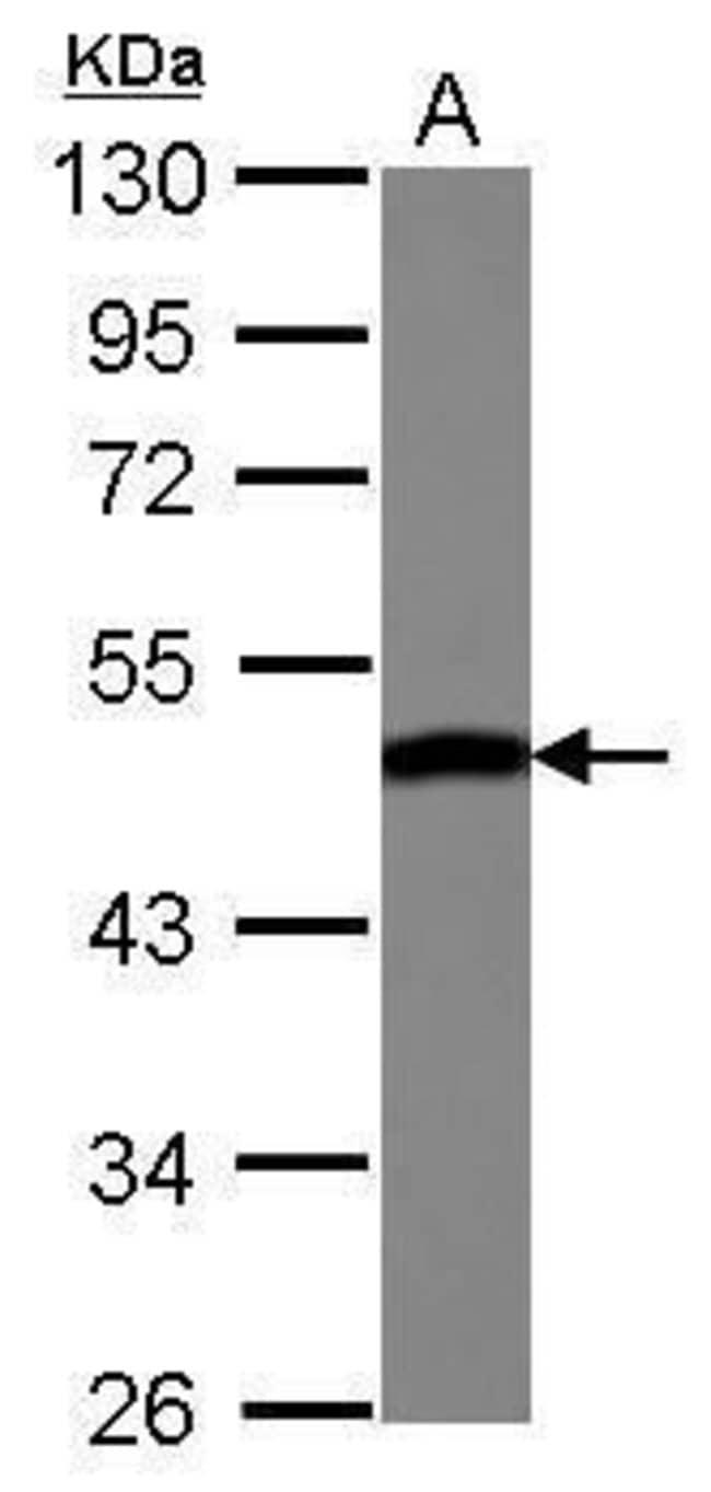 ENO3 Rabbit anti-Human, Polyclonal, Invitrogen 100 µL; Unconjugated
