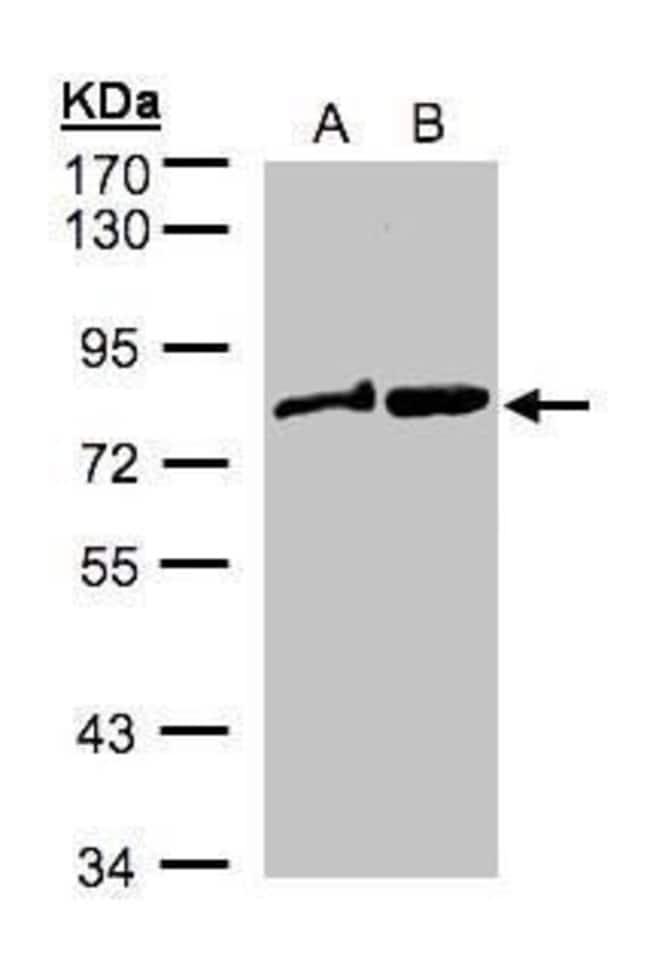 DVL2 Rabbit anti-Human, Mouse, Polyclonal, Invitrogen 100 µL; Unconjugated
