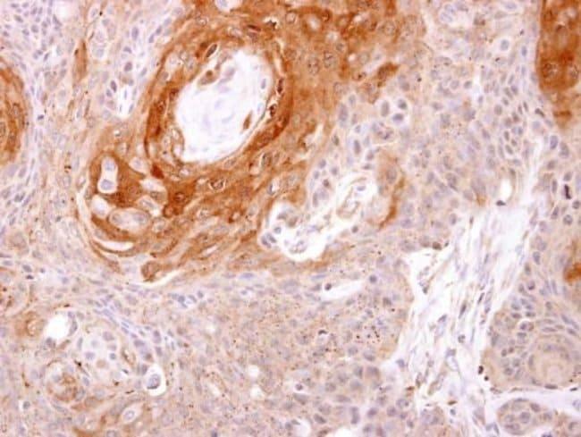 Prostasin Rabbit anti-Human, Polyclonal, Invitrogen 100 µL; Unconjugated