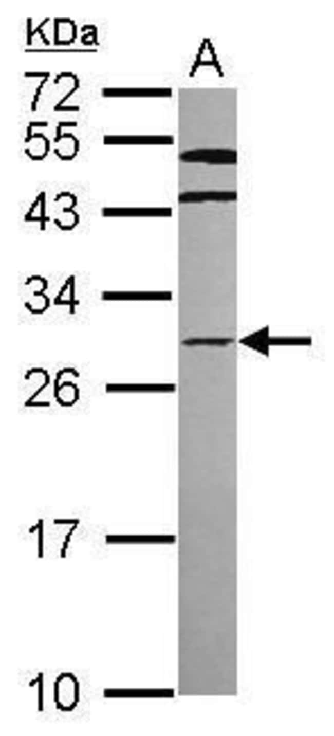 HOXC8 Rabbit anti-Human, Polyclonal, Invitrogen 100 µL; Unconjugated