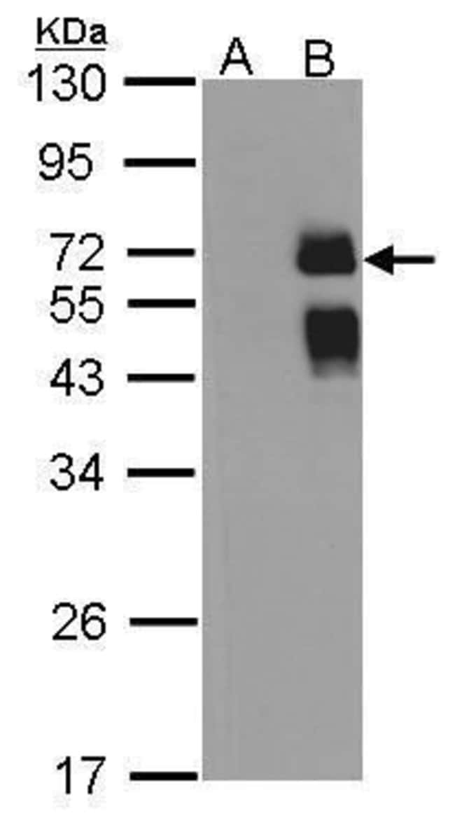 ST6GAL1 Rabbit anti-Human, Polyclonal, Invitrogen 100 µL; Unconjugated