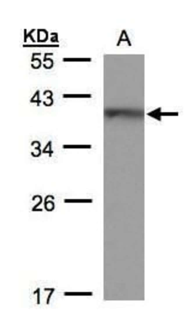 BRAF35 Rabbit anti-Human, Polyclonal, Invitrogen 100 µL; Unconjugated