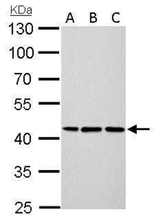 Cytokeratin 14 Rabbit anti-Human, Mouse, Rat, Polyclonal, Invitrogen 100