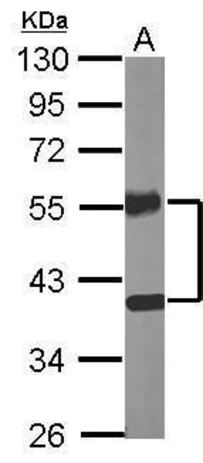 NR2F2 Rabbit anti-Human, Mouse, Polyclonal, Invitrogen 100 µL; Unconjugated