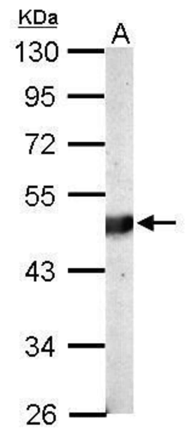 BCKDK Rabbit anti-Human, Mouse, Polyclonal, Invitrogen 100 µL; Unconjugated