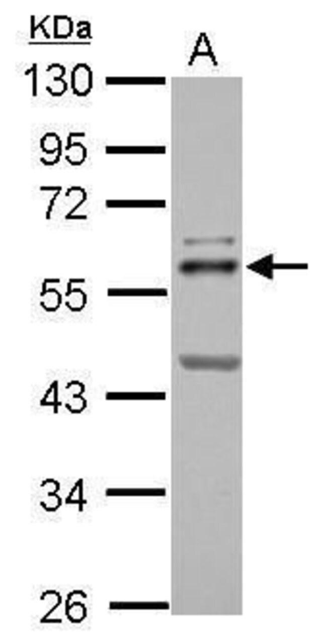 ETS2 Rabbit anti-Human, Rat, Polyclonal, Invitrogen 100 µL; Unconjugated
