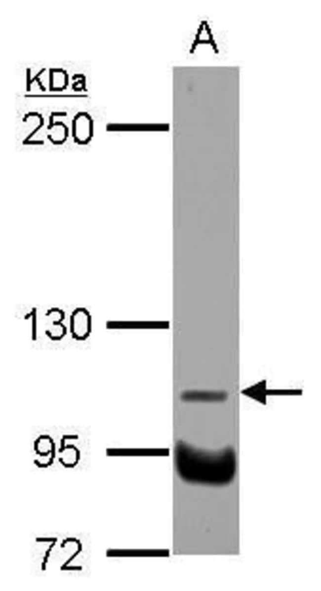 NDST3 Rabbit anti-Human, Polyclonal, Invitrogen 100 µL; Unconjugated