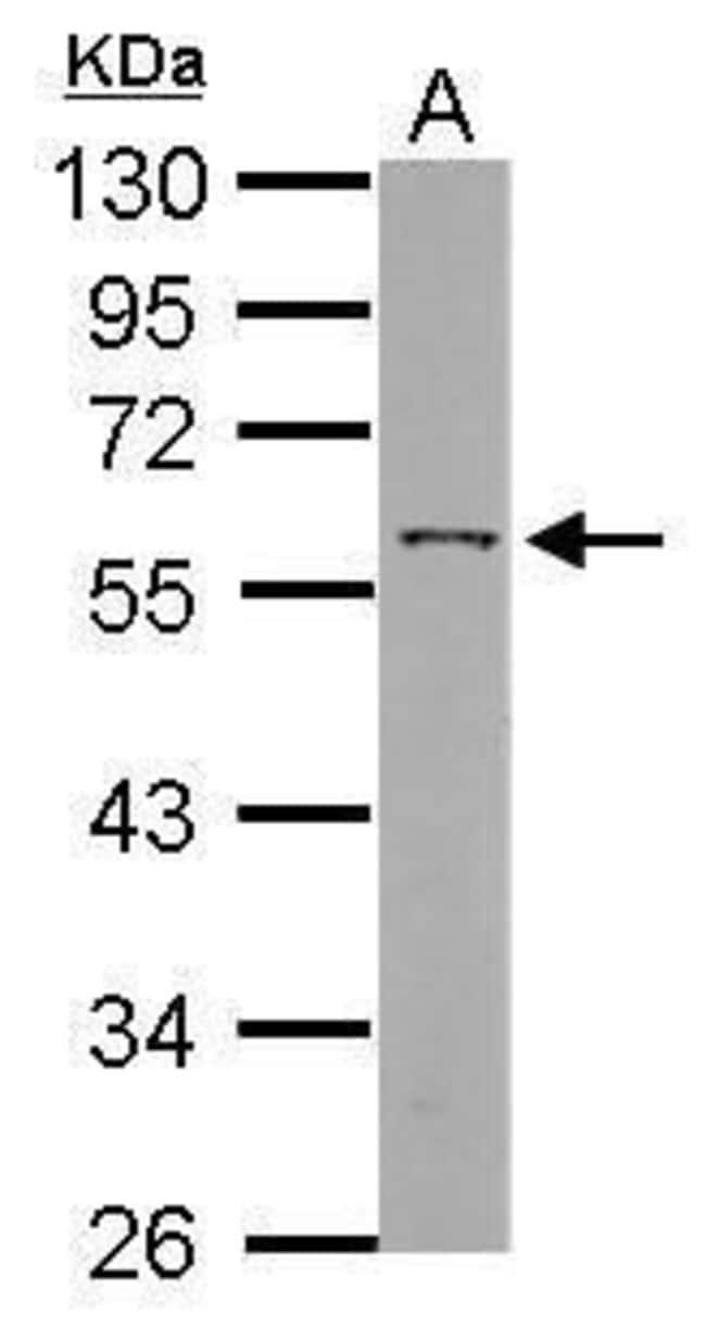ANGPTL3 Rabbit anti-Human, Polyclonal, Invitrogen 100 µL; Unconjugated
